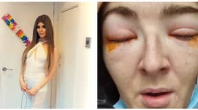Woman Issues Warning After Suffering Severe Reaction To Eyelash Extensions