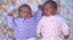 Incredible Moment Premature Twins Were Born Cuddling Each Other