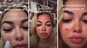TikToker Shocks Her Followers By Drilling Off Mole