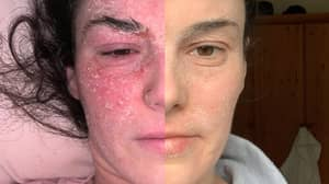 Woman Reveals Incredible Eczema Transformation After Ditching Steroids