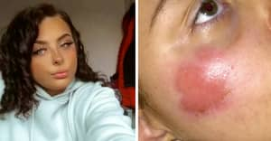 Teenager Left With Horrific Burns After iPhone Charger 'Explodes' While She Slept
