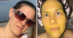 Woman Left With Bright Yellow Skin After DIY Face Mask Fail