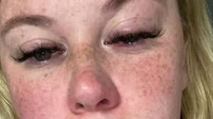 Woman Issues Warning After Zoflora Left Her 'Skin On Fire' And Eyes Swollen