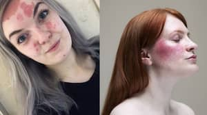 Women Reveal What It's Like To Live With Extreme Eczema, Rosacea and Psoriasis