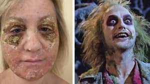 Mum Turns Herself Into 'Beetlejuice' For A Week After Chemical Peel