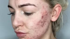 Woman Reveals How She 'Saved' Her Skin Following Five-Year Battle With Acne