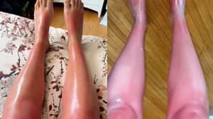 Woman Issues Stark Warning Not To Exfoliate Before Sunbathing