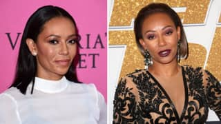 Mel B Flaunts Dramatic Results Of '£4,000 Non Surgical Facelift'