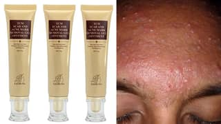 The Internet Can't Get Enough Of This £3 'Miracle' Acne Cream