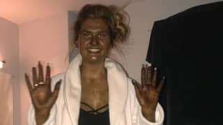Woman Ends Up 'Looking Like Fiona From Shrek' After Fake Tan Fail Turns Her Skin Green