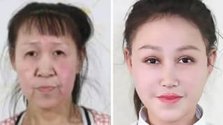 15-Year-Old Girl Who 'Looked Like She Was 60' Given New Face After Strangers Cover Medical Costs