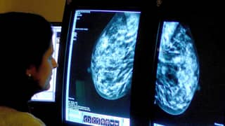 Women Should Be Offered Mammograms And Smear Tests On Lunch Breaks, New Report States