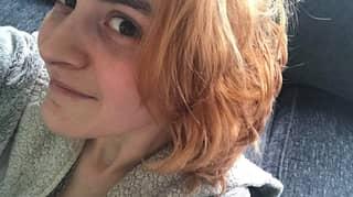 Woman's Hair Turns Orange In Home Dye Fail