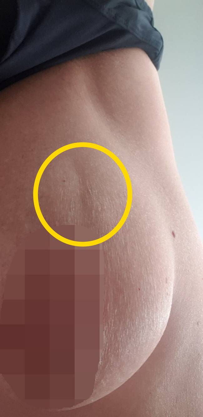 The dent appeared like a stretch mark at first (Credit: Kennedy News and Media)