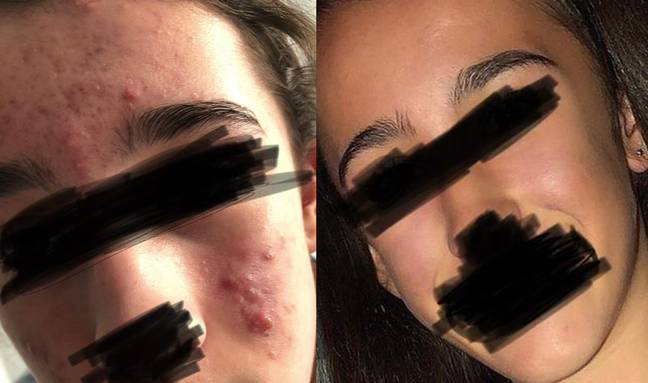 One woman, whose daughter struggled with acne, used Acnecide 5% Gel Benzoyl Peroxide with amazing results. Credit: Superdrug
