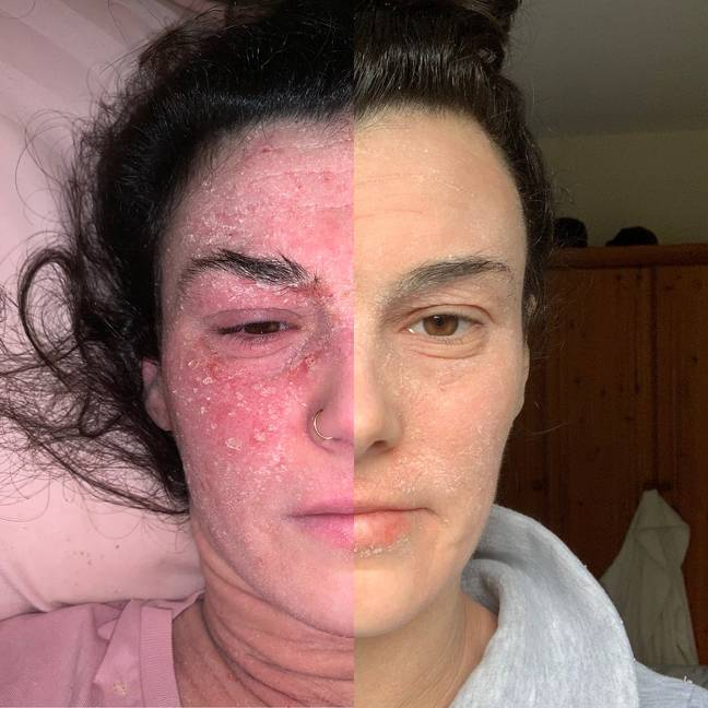 Stephanie is seeing some real results with her skin (Credit: MDW Features)