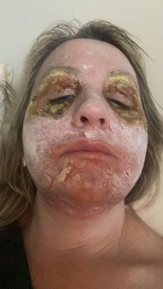 The peel caused horrific scabs on Amanda's skin (Credit: Kennedy News)