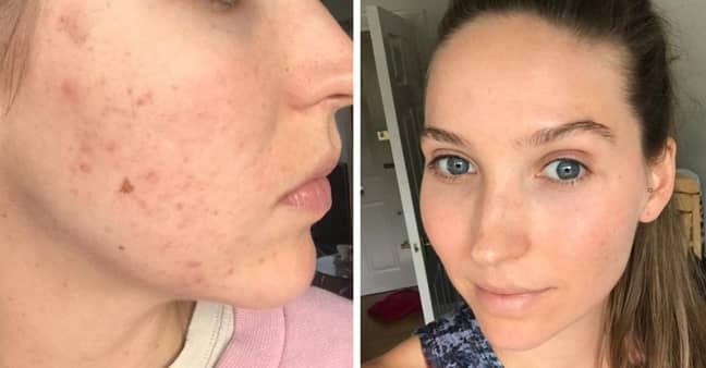 Anna's skin has since improved (Credit: Anna Matheson)