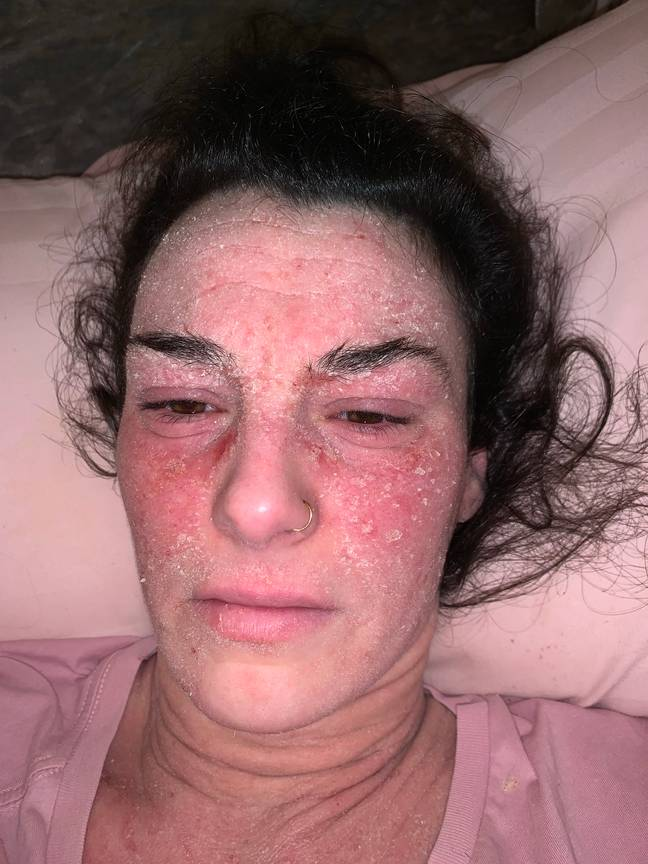 When Stephanie was made redundant in 2018, her eczema flared up worse than ever (Credit: MDW Features)