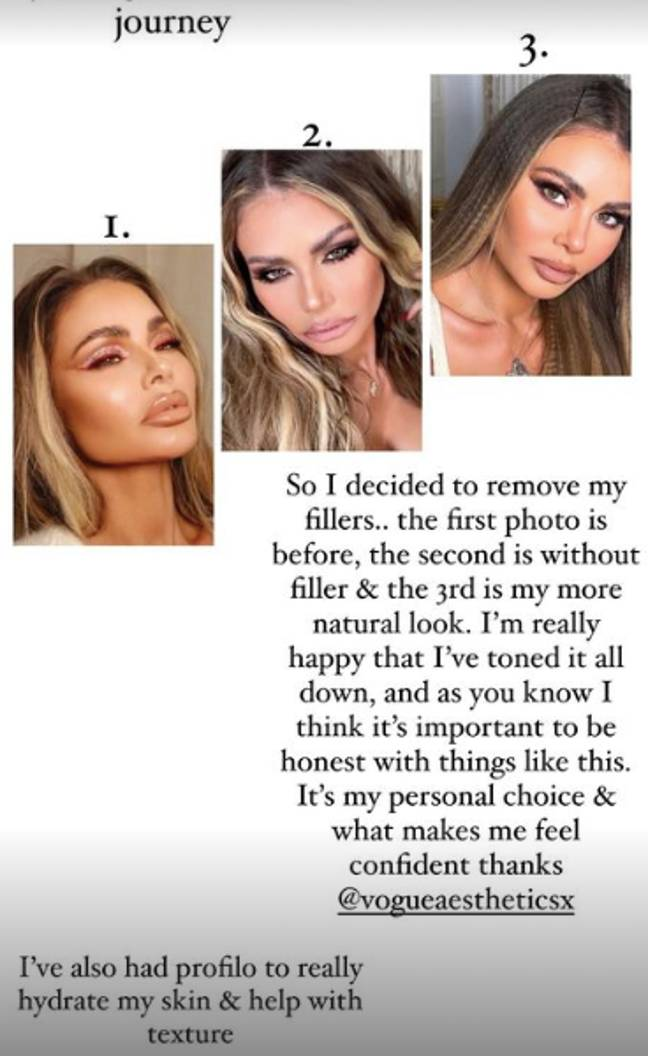 Chloe Sims has revealed her natural look on Instagram, after having her facial fillers removed (Credit: Instagram/Chloe Sims)