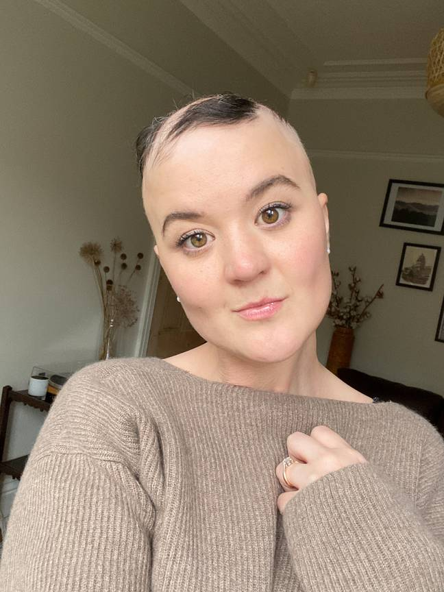 Hannah explained she was also shielding due to immunosuppressing medication taken to treat her alopecia (Credit: SWNS)