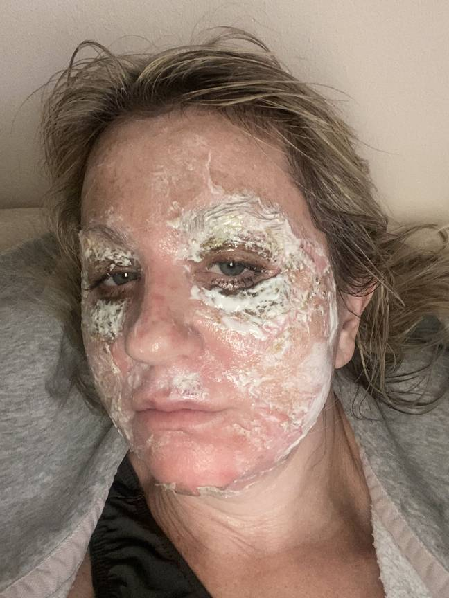 Amanda does not regret the procedure (Credit: Kennedy News)