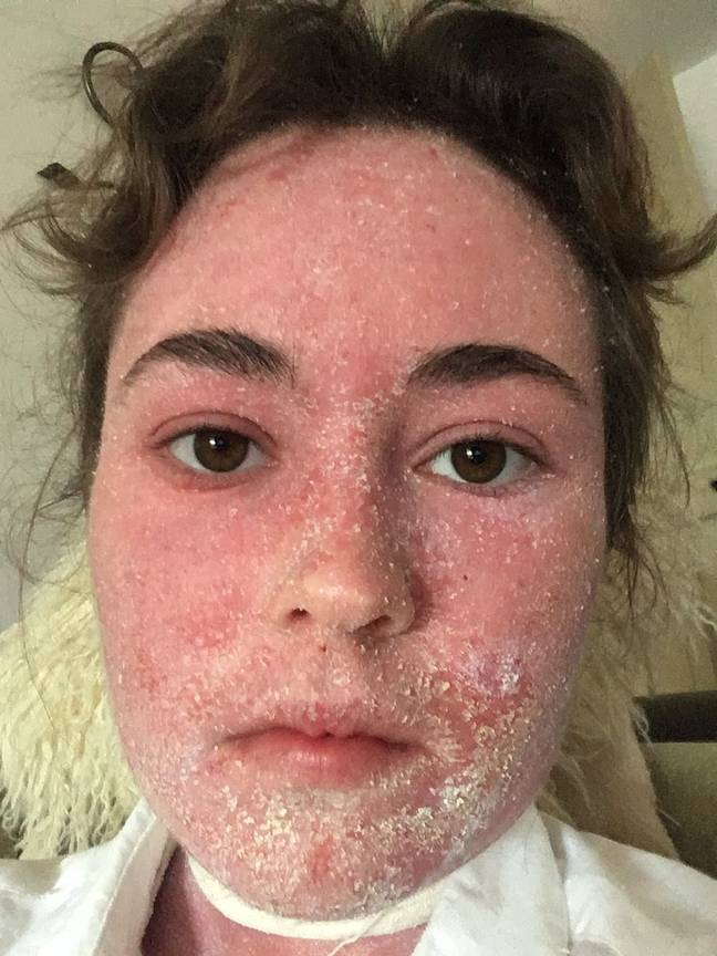 Holly's eczema has troubled her for years (Credit: Media Drum World)
