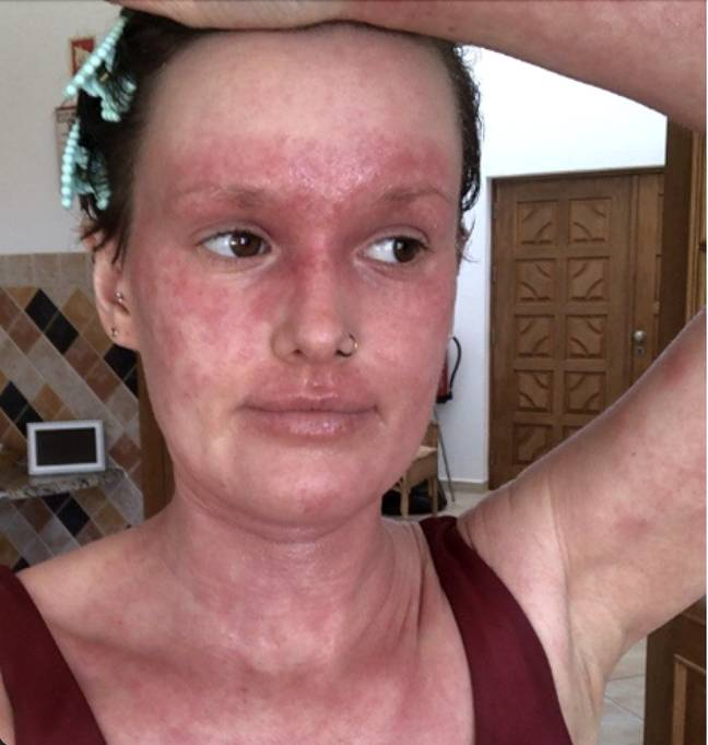 Alex was prescribed topical steroid creams by her GP to soothe the skin during her worst flare-ups (Media Drum World)