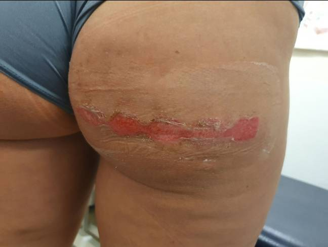 She was left 'branded for life like a farm animal' on her backside after she accidentally sat on them. (Credit: Kennedy News And Media)