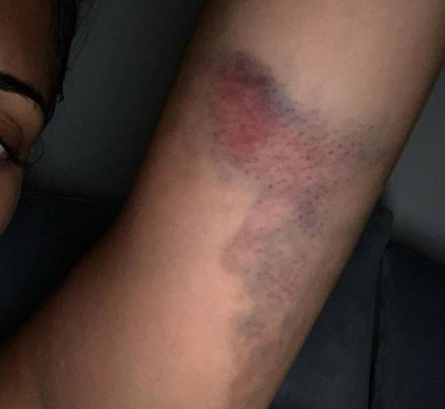 Malin Andersson shared her bruised arm with Instagram followers to raise awareness Credit: Instagram/ Malin Andersson