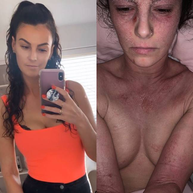 Stephanie is currently going through TSW, where she has cut out all steroids, beauty products and makeup (Credit: MDW Features)
