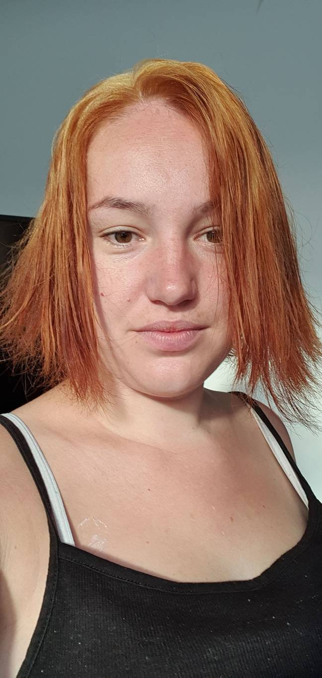 Hollie's hair went bright red (Credit: Kennedy News & Media)