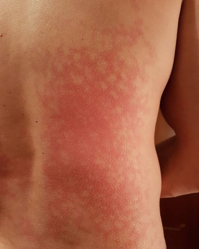 It's not a burn, but a blotchy rash caused by intense heat (Credit: Shutterstock)