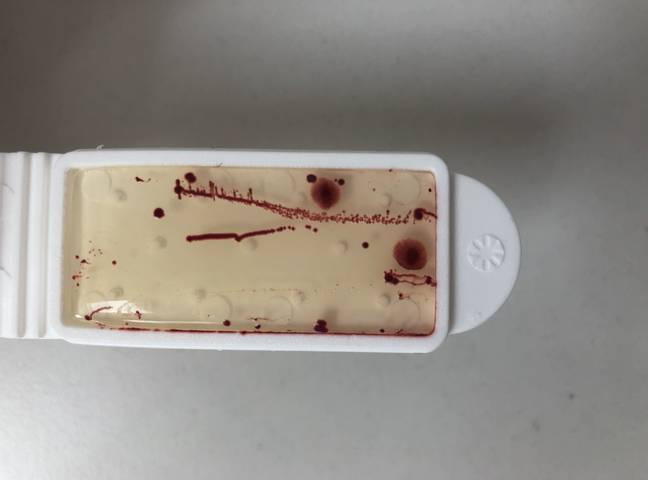 A swab showing the bacteria found on the driver's seat of a family car. Credit: Simoniz