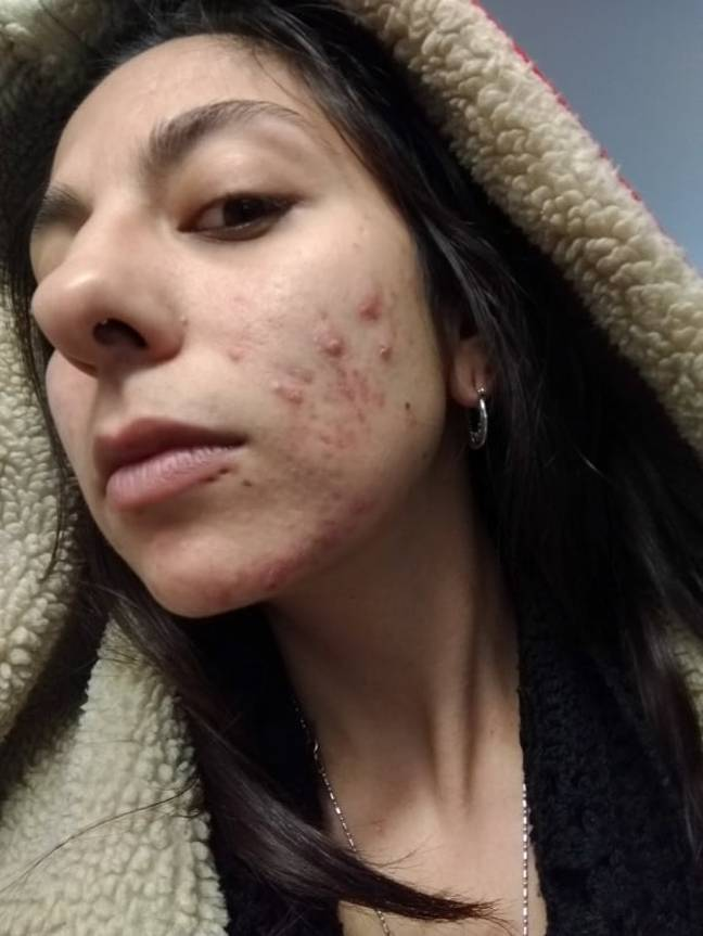 Yasmeen suffered with painful cystic acne (Credit: Caters)