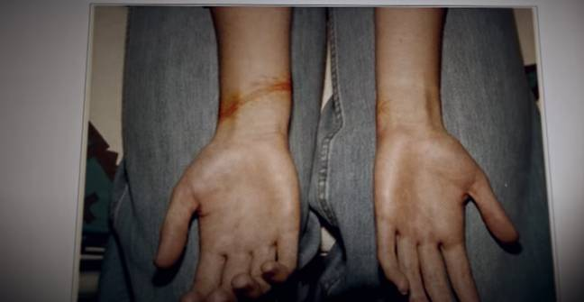 Harrowing footage shows photos of victims wrists after being tied up (Credit: HBO)