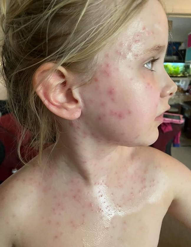 Ember, six, came up in a rash all over her upper body (Credit: Caters)