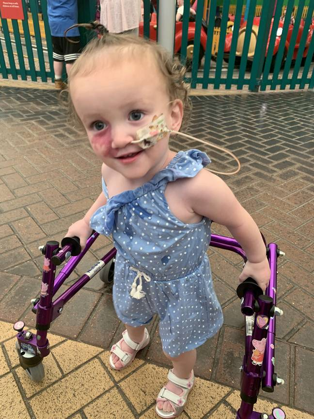 Lela needs to use a nasogastric (NG) tube for food and medication regularly. (Credit: Kennedy News and Media)