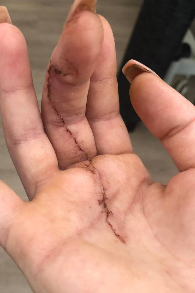 Sarah had to have 20 stitches in her hand. (Credit: Caters)