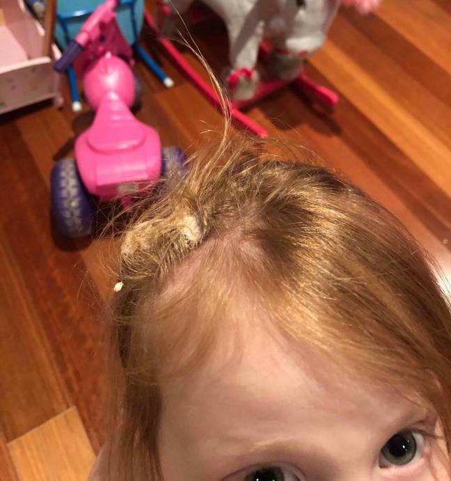 The gum had worked its way into Aria's baby-fine hair causing a wad that was impossible to comb out (Credit: Marnie Pillock)