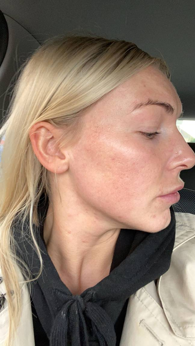 Using Roaccutane has changed Ella's life (Credit: Caters)