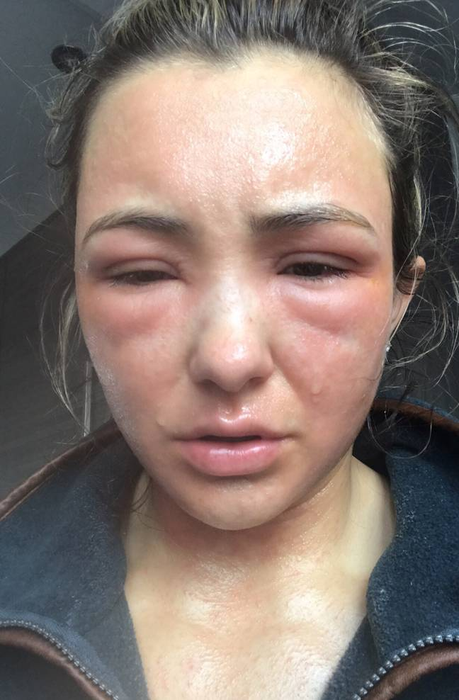 Eden's skin was so sore and swollen that she was mistaken for a victim of domestic abuse (Credit: PA)