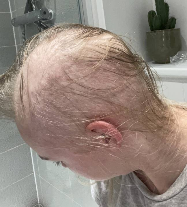 Sophie only had wispy strands before shaving her head (Credit: SWNS)