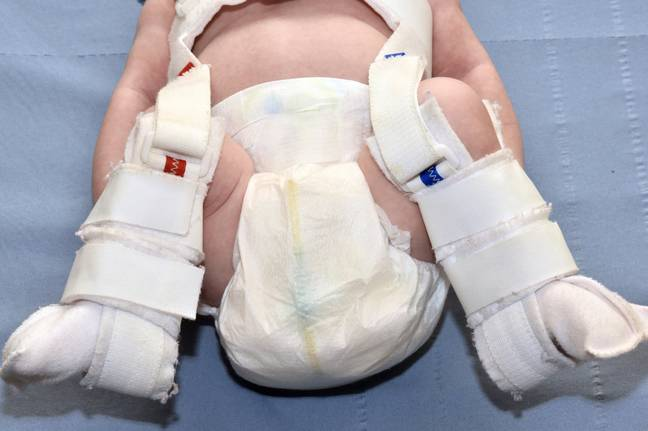 DDH can be fixed with special splints (Credit: NHS)