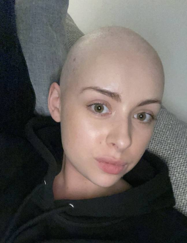 Sophie shaved her head when her hairloss reached 90% (Credit: SWNS)