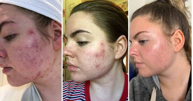 Vanessa says the product is responsible for her acne reduction (Credit: Triangle News)