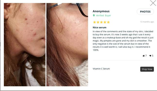 Another claimed her acne was gone in several days. (Credit: Amazon)
