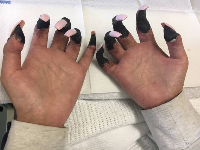 Juttima's fingers turned black (Credit: Caters)