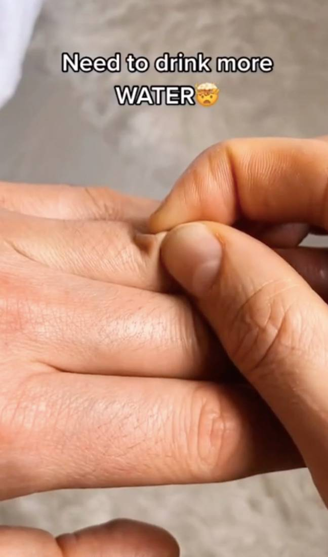 The skin pinch test aims to assess if a person is dehydrated (Credit: TikTok/@dr.karanr)