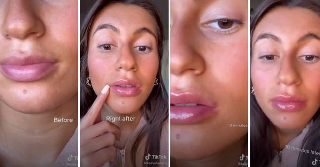 TikTok users are sharing their experiences with the Derol lip plumper (Credit: TikTok/ @kaliyahwozny)